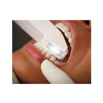 歯型のスキャナー